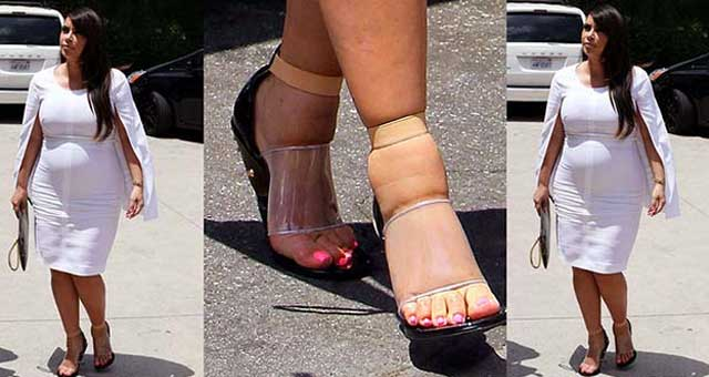 swollen feet pregnancy